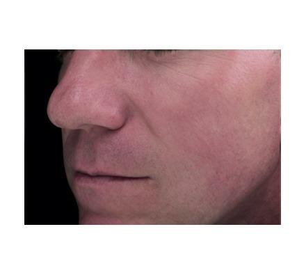 Rosacea treated with harmony vascular laser