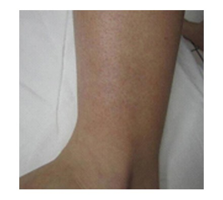 Leg (6 Treatments)