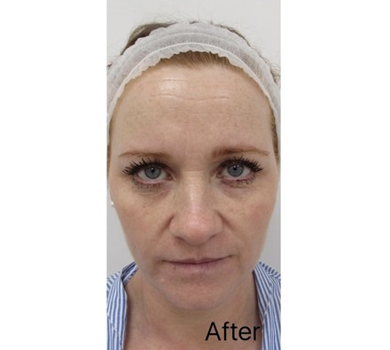 Before and after Obagi Nu derm skin transformation
