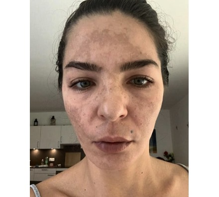 Before and after Obagi Nu derm by Dr Leah Clinic