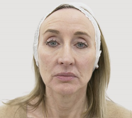 Lower face dermal filler before and after