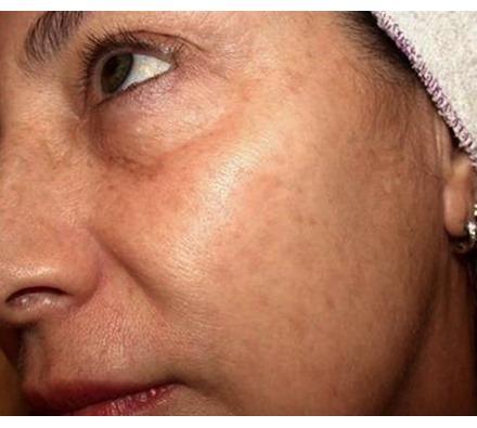 Before after after pigmentation laser treatment