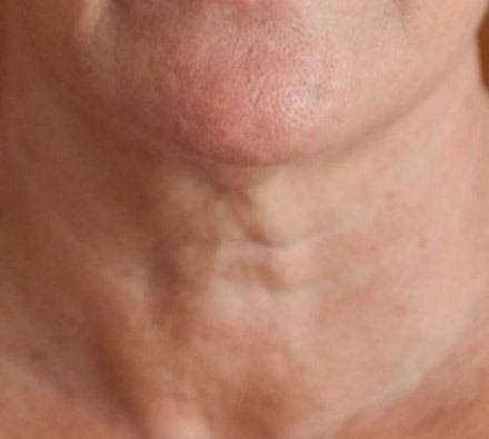 Profhilo on neck