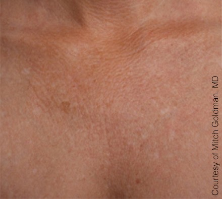 Décolletage Ultherapy before and after