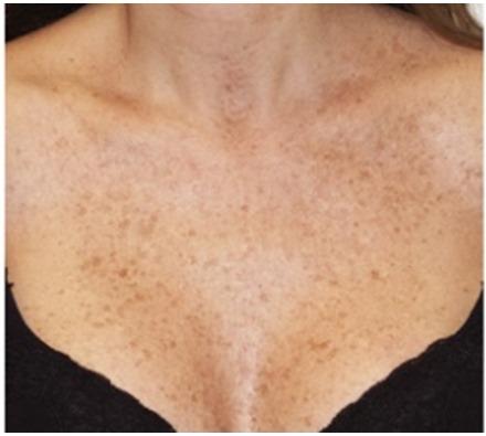 Décolletage pigmentation laser