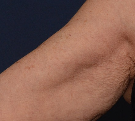 Profhilo on upper arm