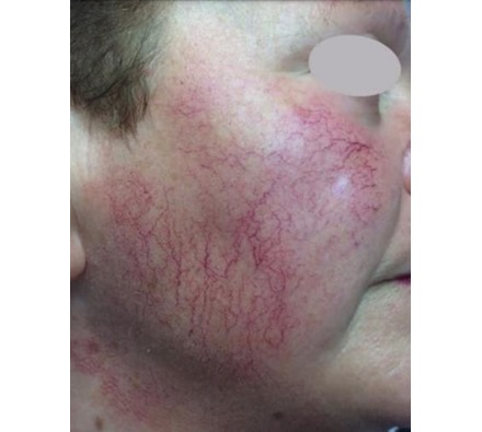 Before and after course of 6 vascular laser