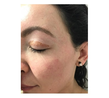 These photographs are of Dr Leah clients directly after treatment.