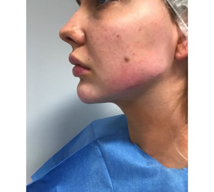 before and after jawline filler