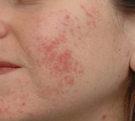 i-pixel harmony laser to treat acne scarring