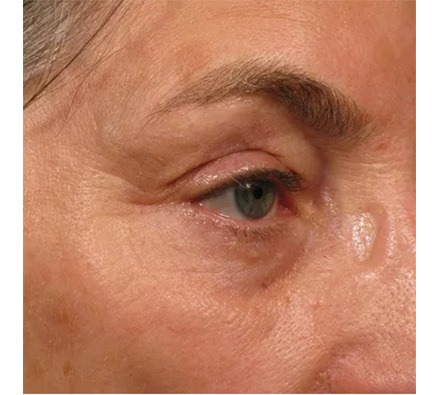 Face Ultherapy before and after