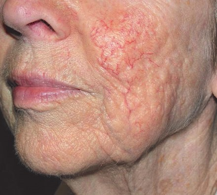 Thread veins on face treated with Dr Leah Clinic vascular laser