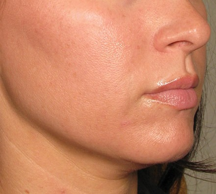 Ultherapy Lower Face before and after
