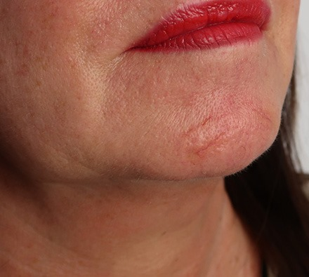 Before and after one session of vascular laser