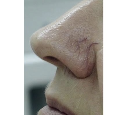 BEFORE AND AFTER VASCULAR LASER