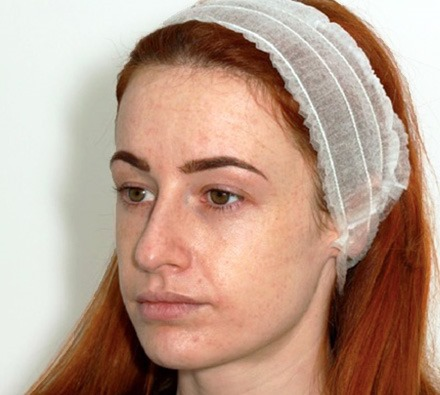 Fox Eye Lift Before and After