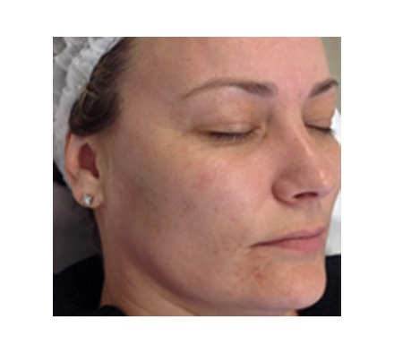 Pigmentation removal laser (sun spot removal)