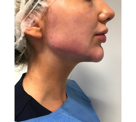 Before and after jaw filler