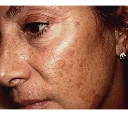 Pigmentation removal laser before and after