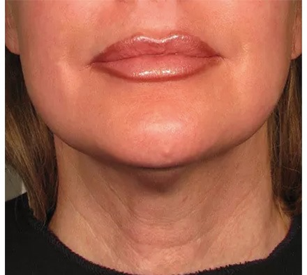 Neck Ultherapy before and after