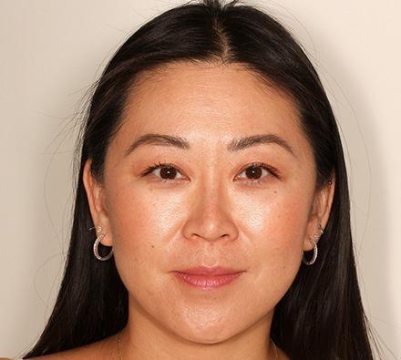 Nose Dermal Filler Before and After
