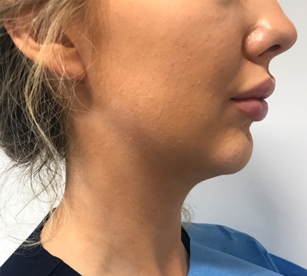 Chin and jawline filler before and after