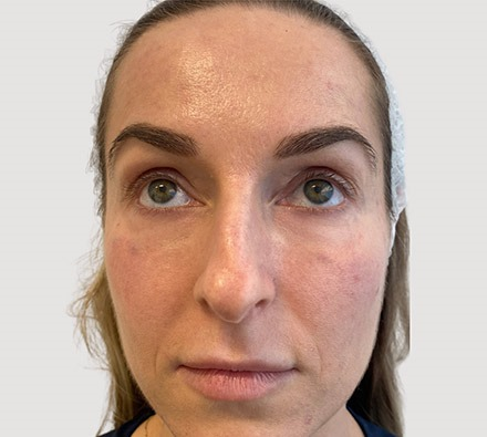 Under Eye Tear Trough Filler Before and After