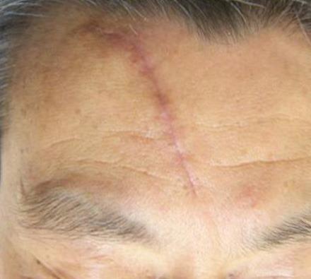 i-pixel harmony laser to treat facial scar
