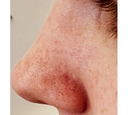 Before and after deep exfoliation facial