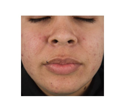 DermaClear (Acne)