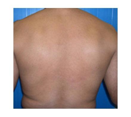 Full Back
