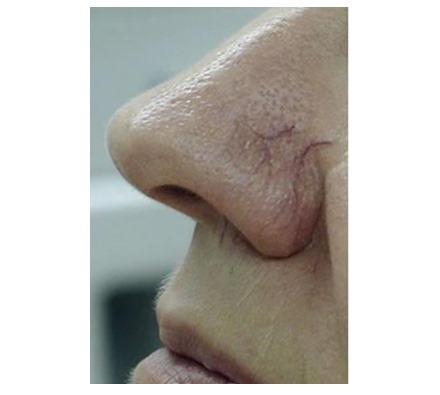 Thread veins on nose treated with vascular laser