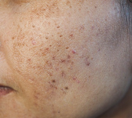 Before and after course of 6 Dermapen plus uber peel treatments