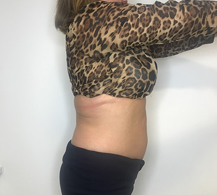Before and after fat freezing at Dr Leah Clinic (photos 12 weeks apart)