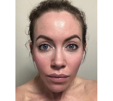 Obagi Nu Derm results by Dr Leah Clinic