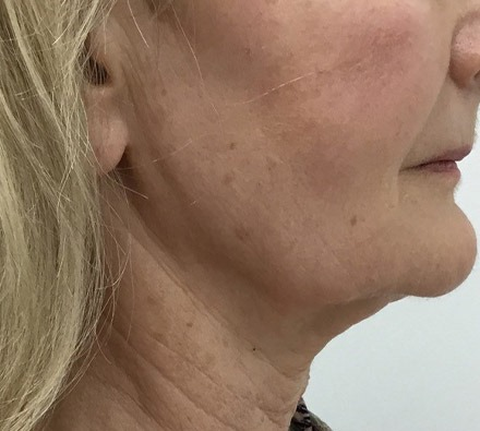 Ultherapy ¾ face before and after