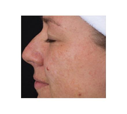 SkinBrite (Pigmentation)