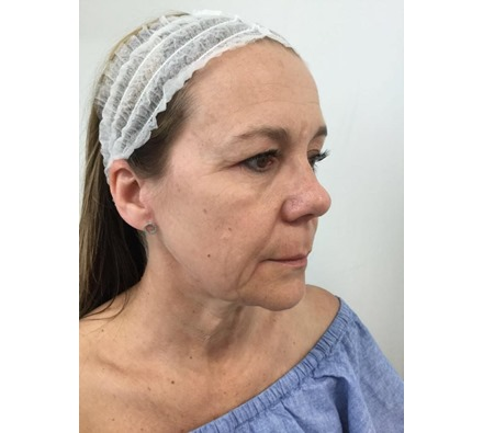 Dr Leah Lift face and neck