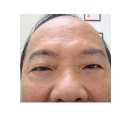 Lines on Forehead and Improvement to Eye Bags