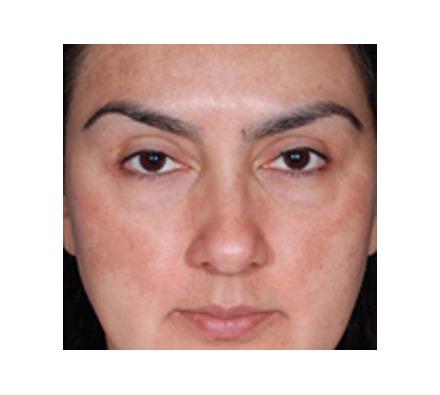 Obagi Nu derm results (12 Week Treatment)