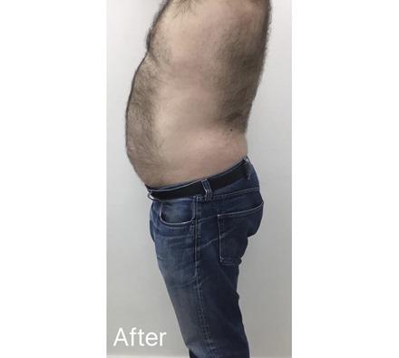 Fat freezing at Dr Leah Clinic (photos taken 8 weeks apart)